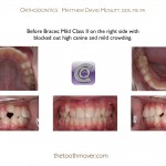 1-Blocked-canine-before-orthodontist-cary-clayton-nc-mcnutt-66