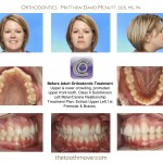 1-Braces-adult-extraction-orthodontist-mcnutt-nc-10