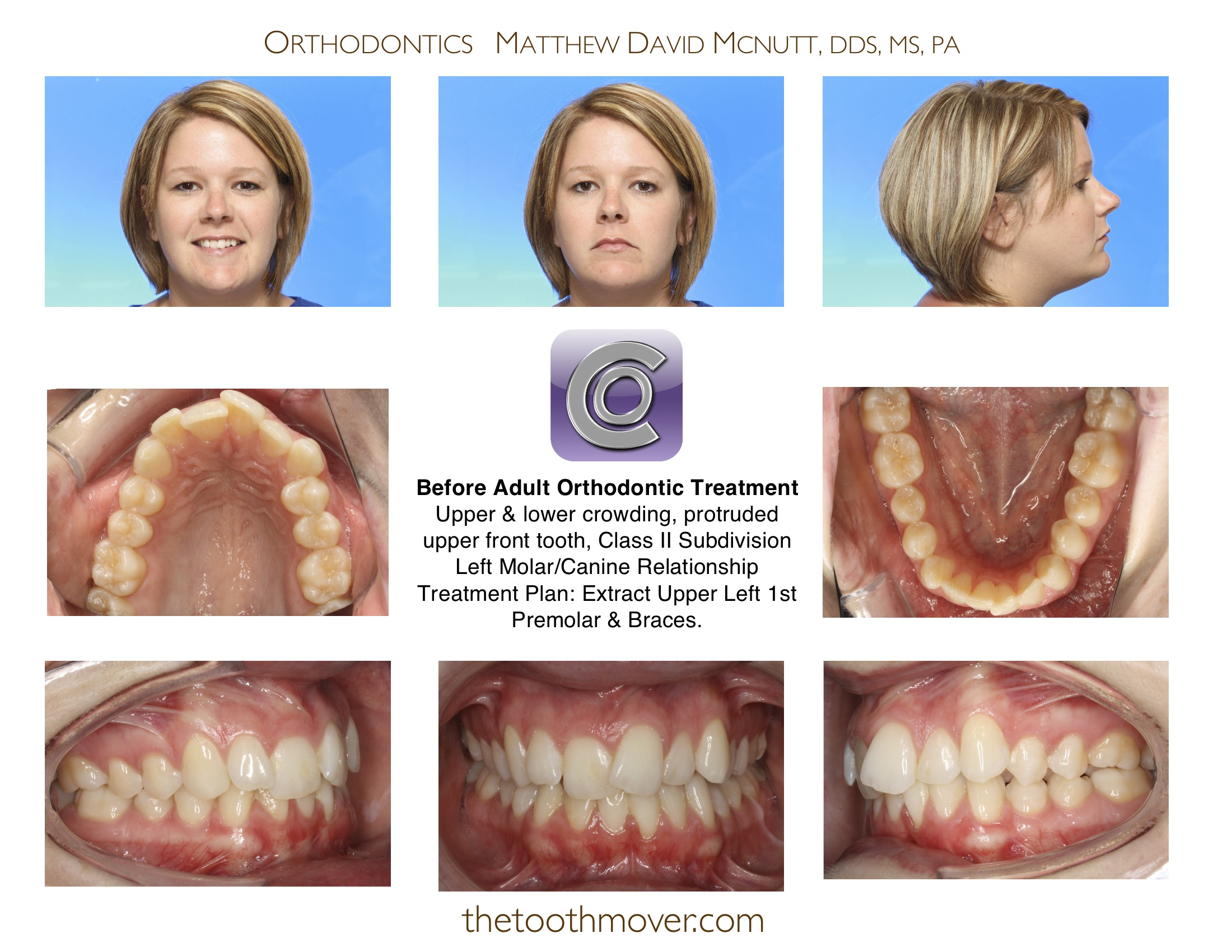 Braces Without Extractions 1-braces-adult-extraction