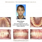 1-Class-II-Braces-orthodontist-mcnutt-cary-clayton-nc-44