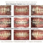 1-Class-II-Damon-Braces-orthodontist-mcnutt-12