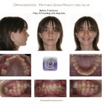 Class-II-MARA-Before-McNutt-Orthodontist-1