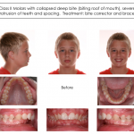 1-Class-II-MARA-Before-Orthodontist-Cary-Clayton-NC-McNutt