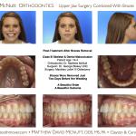 1-Class-III-Braces-Surgery-McNutt-Orthodontist-4