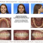 1-Class-III-Braces-Surgery-McNutt-Orthodontist-5
