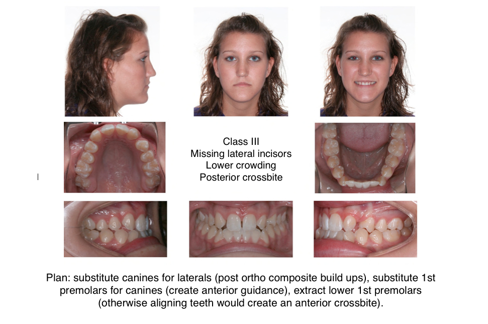 Braces Without Extractions 1-class-iii-extraction-braces