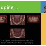 1-Class-III-Extraction-premolars-orthodontist-cary-clayton-nc-mcnutt33