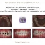 1-Class-III-braces-orthodontist-22