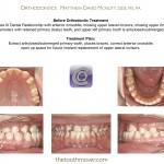 1-Class-III-missing-teeth-braces-orthodontics-mcnutt-cary-clayton-nc-44