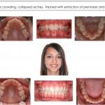 1-Collapsed-Deep-Bite-Orthodontist-McNutt-44