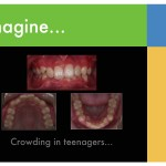 1-Crowded-teeth-orthodontist-mcnutt-braces-55
