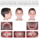 1-Crowded-teeth-orthodontist-mcnutt-braces-66
