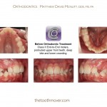 1-Crowding-Damon-Braces-Orthodontist-cary-clayton-nc-mcnutt-77