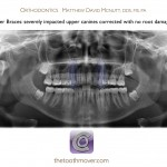 1-Impacted Canine-Panoramic-After-Orthodontist-Mcnutt77
