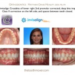 1-Invisalign-Teen-orthodontist-cary-nc-clayton-mcnutt-11