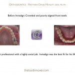 1-Invisalign-orthodontist-adult-McNutt-Cary-Clayton-NC-22
