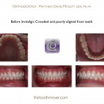 1-Invisalign-orthodontist-adult-McNutt-Cary-Clayton-NC-33