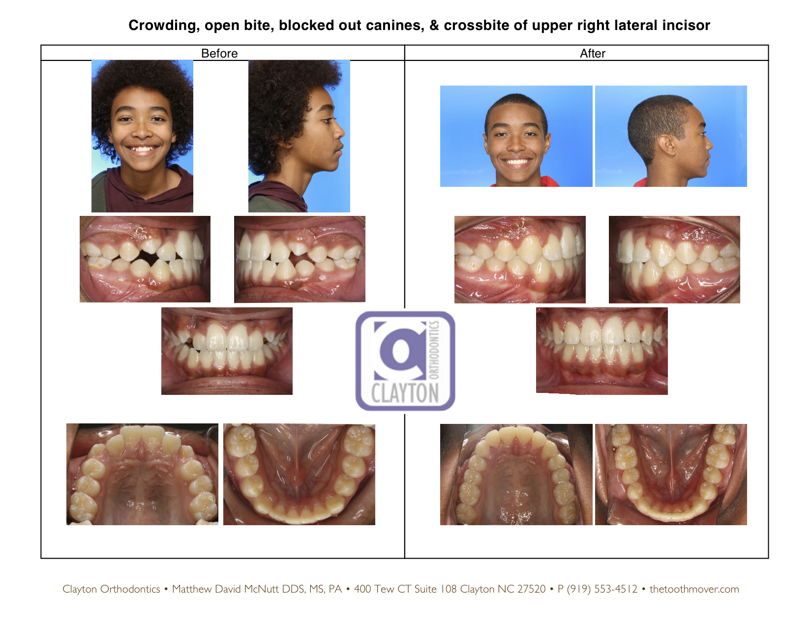 orthodontist reviews reno nv
