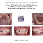 1-Orthodontist-cary-clayton-nc-crowding-braces-1414