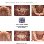 1-Phase-I-Incisor-Alignment-orthodontist-raleigh-nc-mcnutt-22
