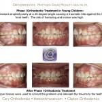1-Phase-I-Incisor-Trauma-orthodontist-cary-raleigh-nc-mcnutt-77