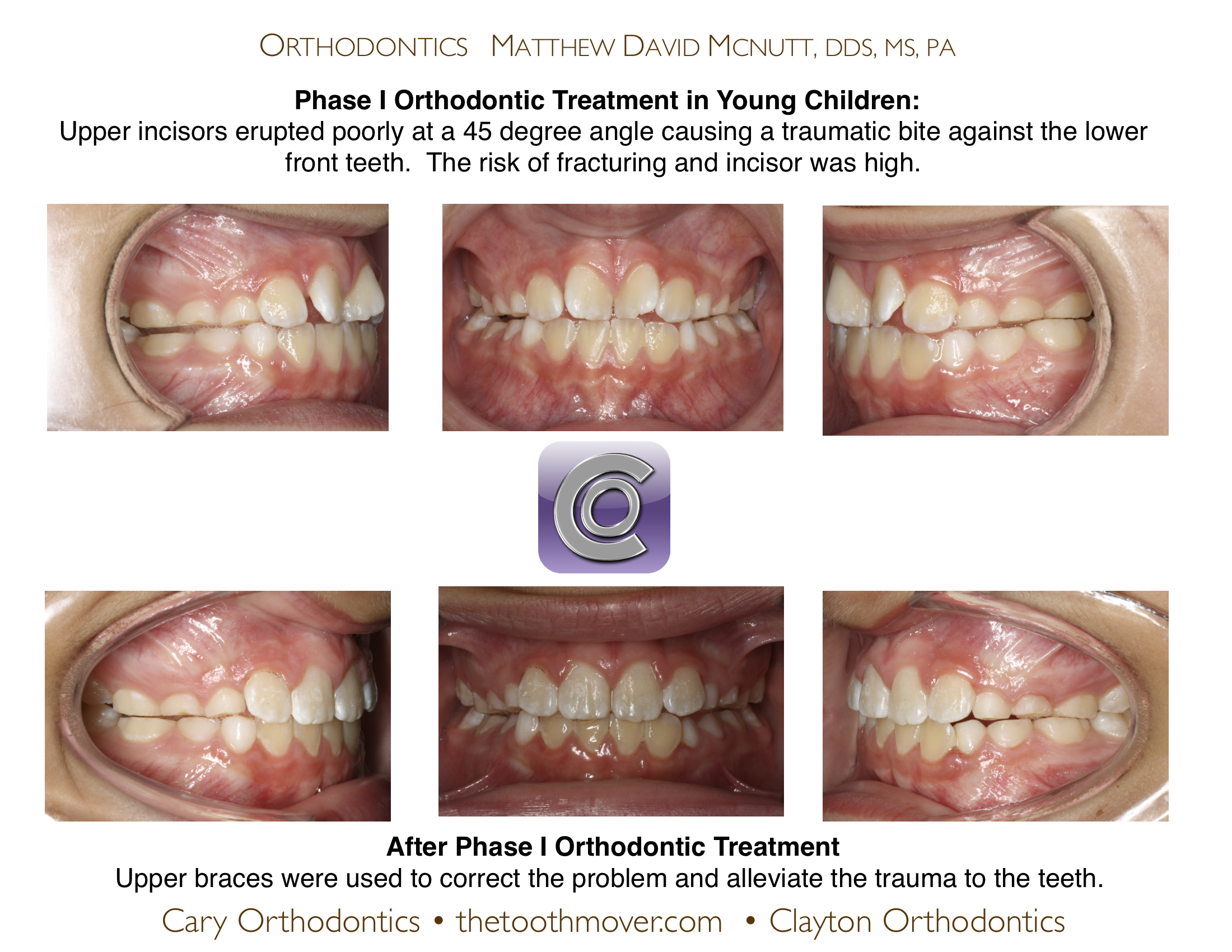 trauma front teeth