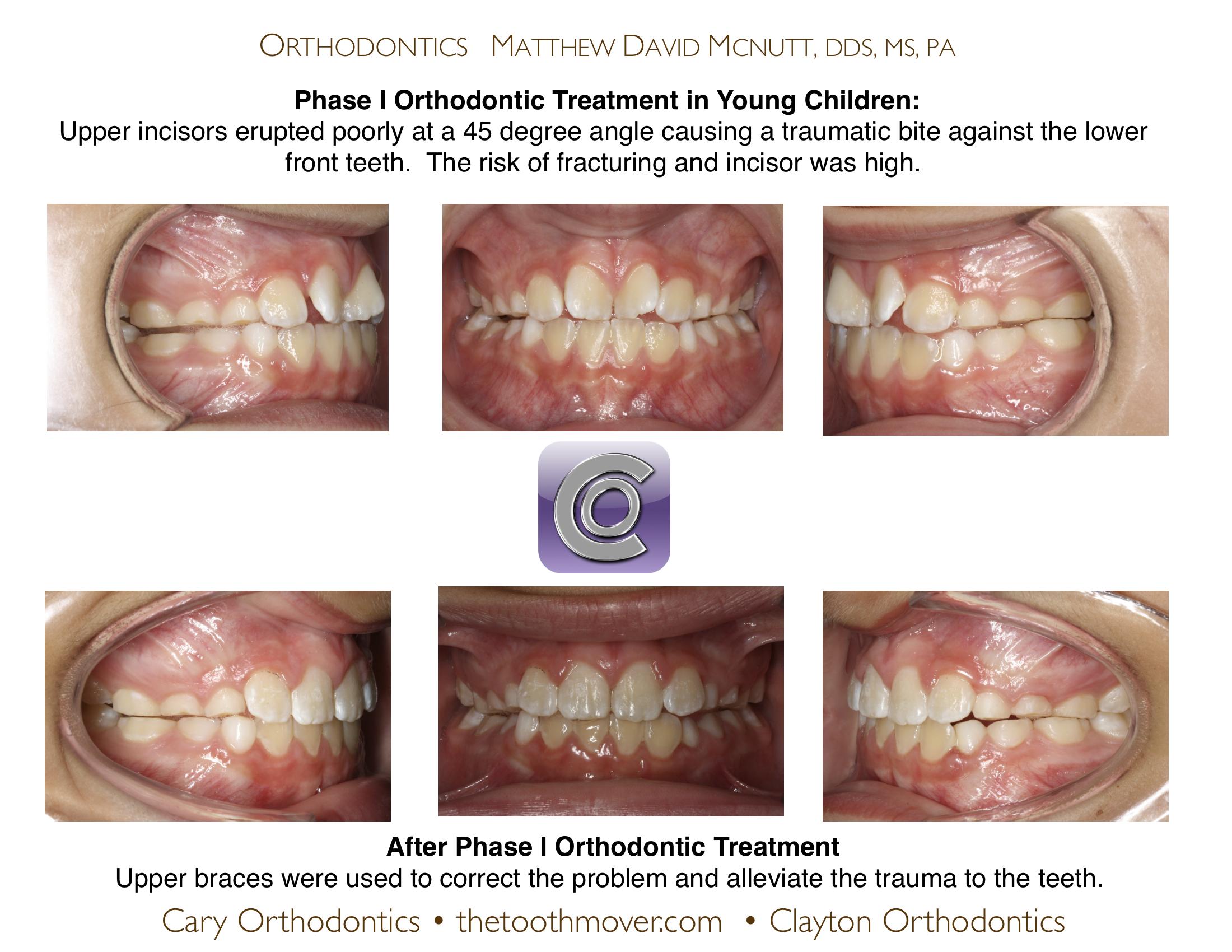 trauma front teeth