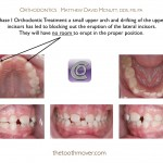1-Phase-I-Orthodontist-braces-cary-raleigh-mcnutt-88