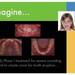 1-Phase-I-orthodontic-expander-braces-cary-clayton-nc-mcnutt-11