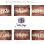 1-Phase-I-orthodontic-treatment-cross-bite-orthodontist-mcnutt-1010