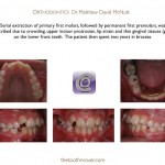 1-Serial-Extraction-Orthodontist-Braces-cary-clayton-nc-mcnutt-11