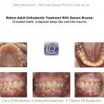 1-adult-orthodontic-treatment-damon-braces-mcnutt-44
