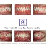 1-anterior-cross-bite-braces-orthodontist-cary-garner-nc-99