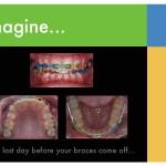 1-braces-colors-straight-teeth-orthodontist-mcnutt-55