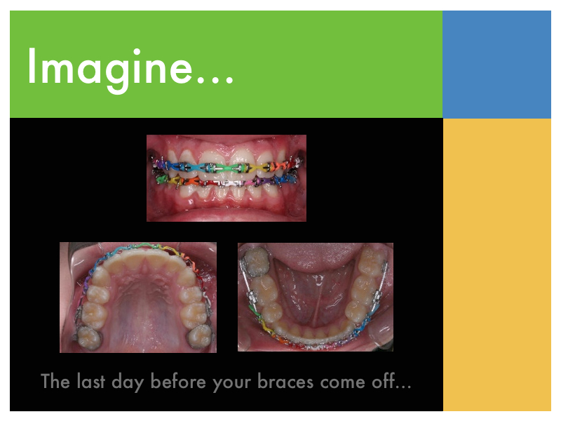 Braces Colour Selector Braces Colors Selector Quiz