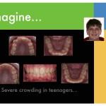 1-braces-crowded-teeth-orthodontist-mcnutt-cary-clayton-nc-77