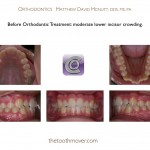 1-braces-orthodontist-cary-clayton-nc-mcnutt-1212
