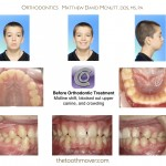 1-canine-blocked-out-impacted-braces-mcnutt-nc-22