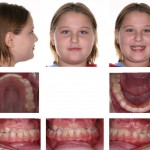 1-cross-bite-front-teeth-orthodontist-mcnutt-raleigh-nc-44