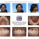 1-cross-bite-incisor-front-tooth-braces-cary-clayton-nc-55
