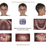 1-cross-bite-teeth-braces-cary-clayton-nc-1