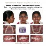 1-crowded-teeth-braces-orthodontist-cary-clayton-nc-12