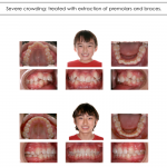 1-crowded-teeth-orthodontist-cary-clayton-nc-mcnutt-33
