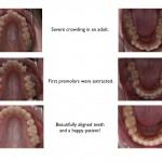 1-crowding-adult-braces-straight-teeth-orthodontist-mcnutt-66