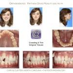1-crowding-braces-premolar-extraction-orthodontist-mcnutt-11