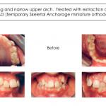 1-crowding-braces-premolar-extraction-orthodontist-mcnutt-22