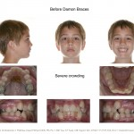 1-crowding-damon-braces-orthodontist-mcnutt-clayton-cary-nc-33