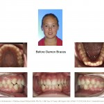 1-damon-braces-crooked-straight-teeth-orthodontist-mcnutt-1010