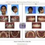 1-damon-braces-crowded-teeth-straight-orthodontist-mcnutt-11