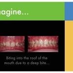 1-deep-bite-braces-orthodontist-cary-clayton-nc-mcnutt-11